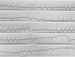 dog cardiac ECG