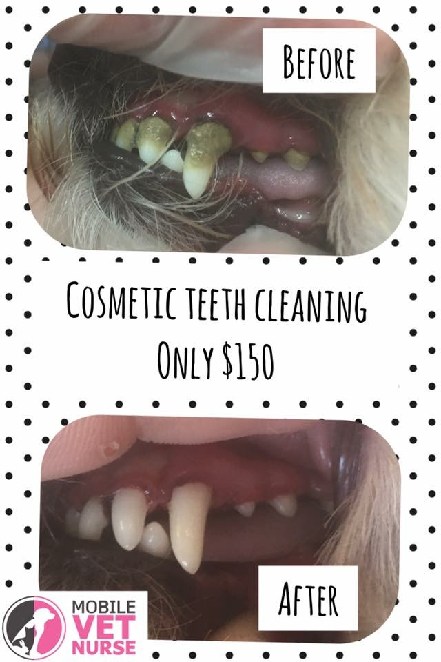cosmetic teeth clean