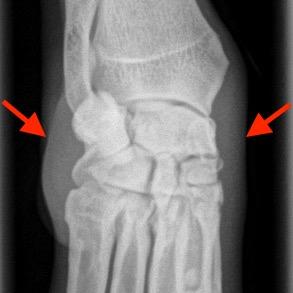 dog sprained wrist