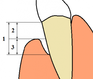 gingival sulcus depth